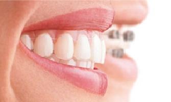 Invisalign unsichtbare Zahnspange laecheln Zahnarzt Köln