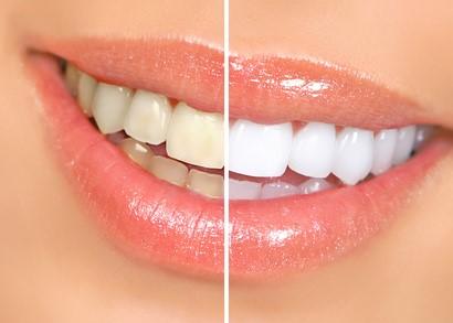 Zahnreinigung Zaehne aufhellen bleaching Zahnarzt Köln