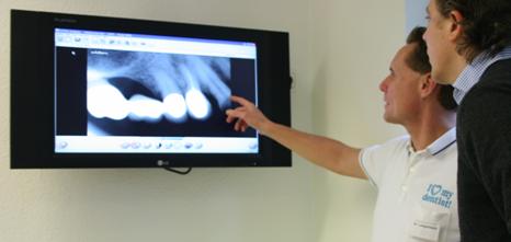 zahnersatz beratung beim zahnarzt Zahnarzt Köln