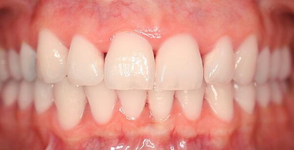 Zahn Bleaching nachher weisse zaehne Zahnarzt Köln