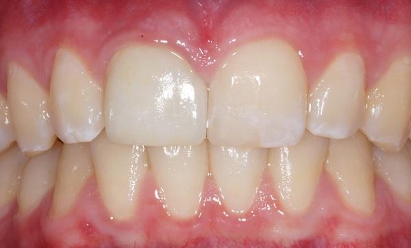 veneers nachher Zahnarzt Köln