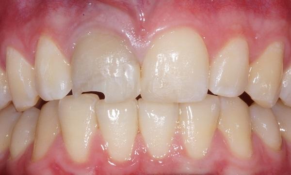 veneers vorher 2 Zahnarzt Köln
