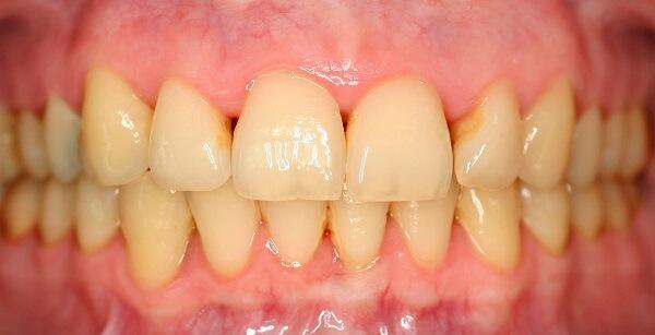 zahn bleaching vorher zaehne mit gelblichem belag Zahnarzt Köln