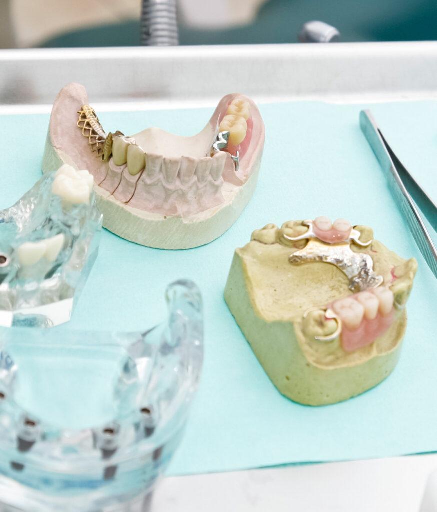 Zahnkrone Zahnarzt Köln