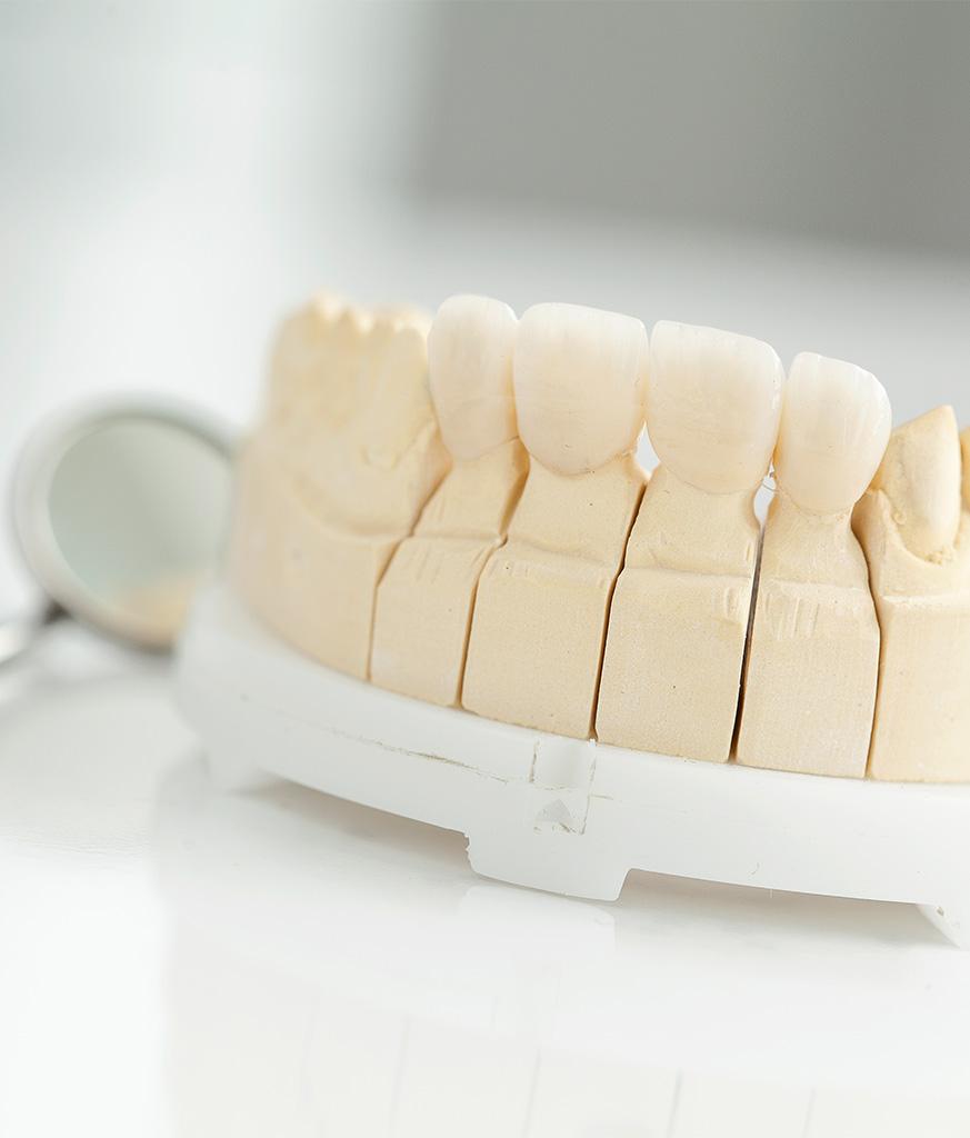 Vollkeramik istockphoto 531326030 2048x2048 1 873x1024 Vollkeramik Zahersatz Zahnimplantate Zahnarzt Köln
