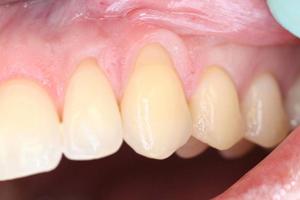 Zahnhals Vorher