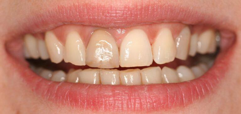 Zahnkrone vor der Behandlung