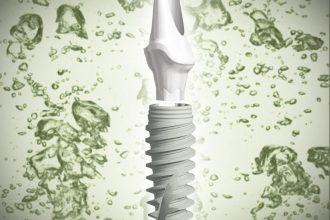 Implantat Grün